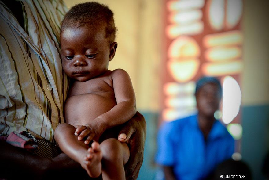 Resultado de imagen para DESNUTRICIÓN INFANTIL